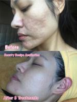 Get the Best Acne scar treatment in Singapore