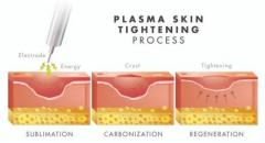 Get the Best Skin Tightening Services in Singapore