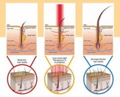 Get The Best low level laser therapy services in Singapore