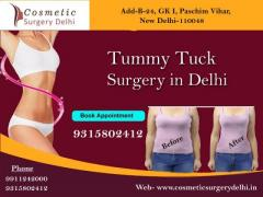 You Need To Know About Tummy Tuck Surgery in Delhi