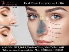 The Importance Of Nose Surgery and Rhinoplasty