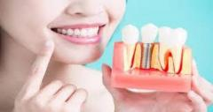 Dental Implants in Chennai | Rajandental